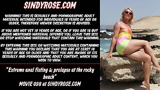Extreme anal fisting & prolapse at the rocky beach